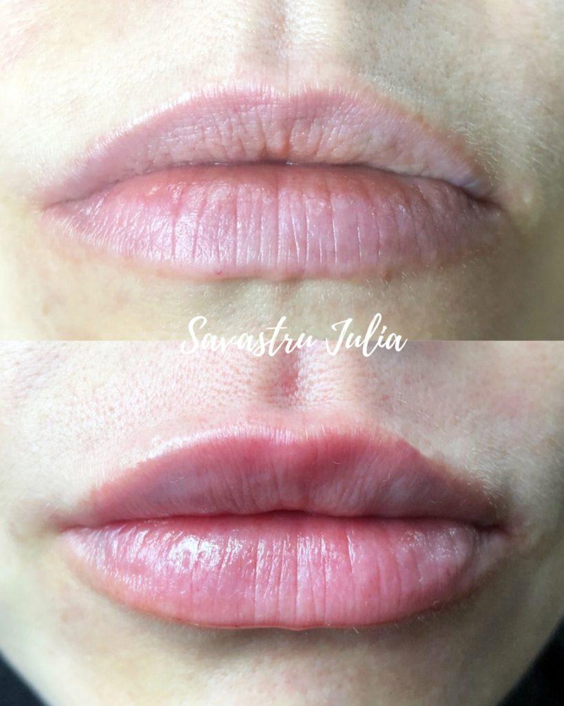Увеличение губ Ялта